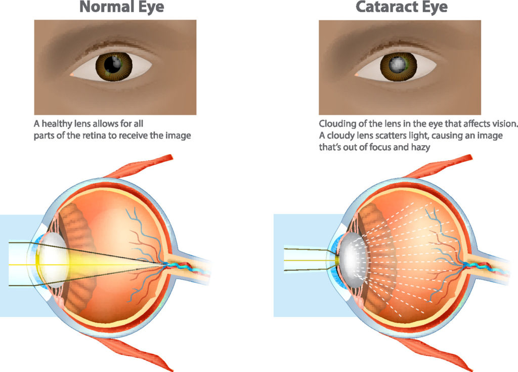 FLACS Cataracts surgery
